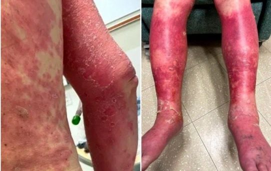 Man's Skin Burns, Swells, Then Peels Off in Severe Reaction to Johnson & Johnson Covid Vaccine- BY Gateway Pundit